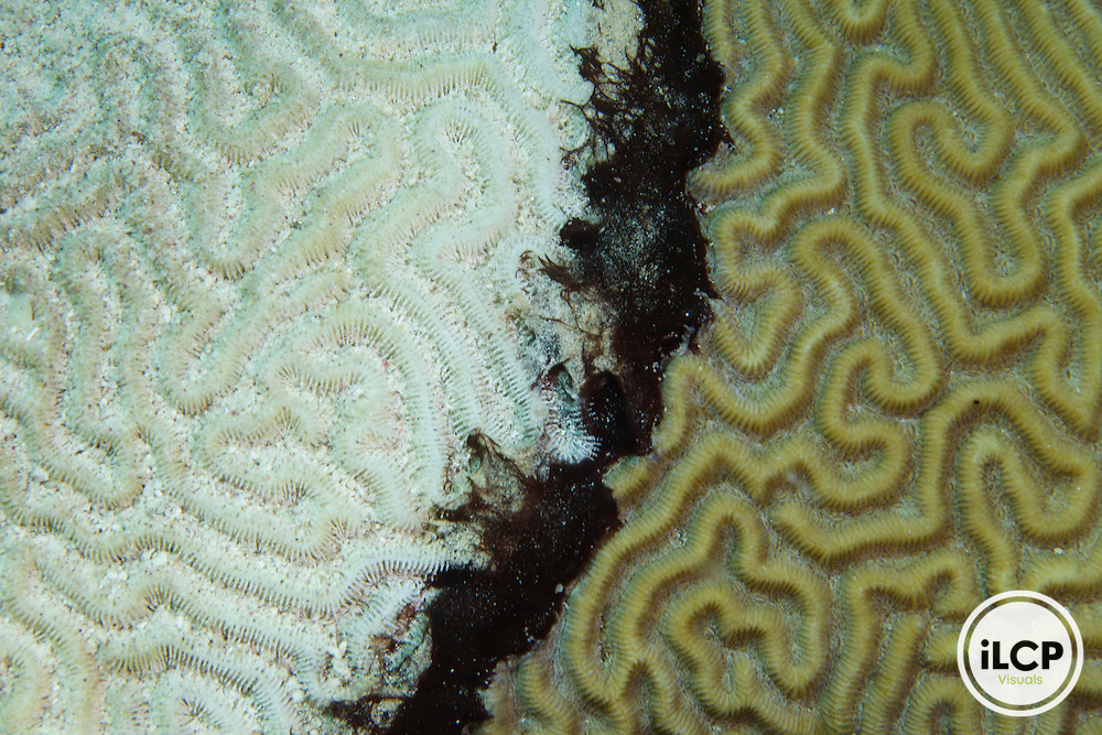 Black-Band Disease on a Brain Coral.  On the left is dead coral skeleton and on the right is healthy tissue.  The black black filamentous tissue is the advancing the disease. Black-band disease can advance 2mm - 2 cm per day and can kill a coral in a few weeks to a couple of months.
