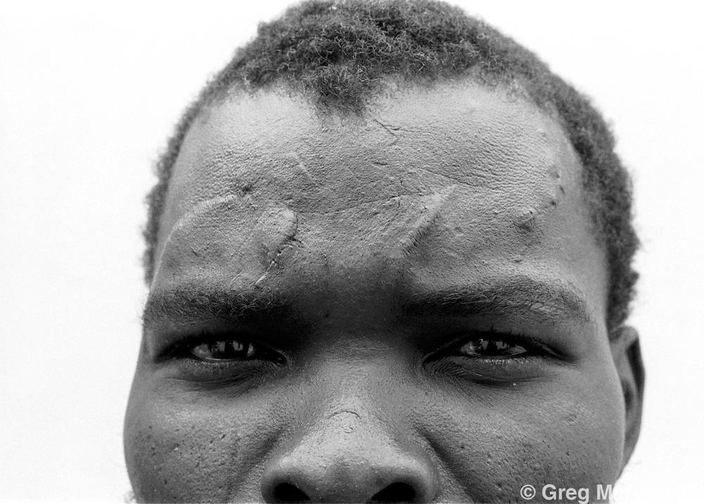 SOUTH AFRICA 1989 - Victim of torture from KwaNdebele homeland police, Nov 4, 1989.   (Photo by Greg Marinovich)  (Photo by Greg Marinovich)