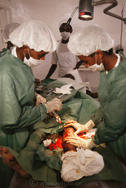 Doctors working on an injured man, a gunshot victim, at Keysany Hospital, ICRC, in Mogadishu, the war torn capital of Somalia. March 1992.