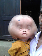 "EXCLUSIVE<br /> The boy with the 20lb head<br /> <br /> His name is Emon, 2 year old boy from Southern Bangladesh. He was born as a cesarean baby with a slightly developed head. His head continue to expand since his birth. His father a Mason & mother a housewife, are desperate to find help for there son.<br /> <br /> after some time Emon's parents were anxious seeing their boy and rushed to different village doctors but nobody could tell what the disease was They also got different spiritual treatments for Emon but nothing worked out and the head keeps getting bigger, finally it was identified as the disease know as  ""hydrocephalus"", Emon was unable to talk, walk or even move his limbs. His parents always have to take care of their son even for minimum human tasks. They feed him and wash him. <br /> <br /> His parents are hopeless with their son's future. But some Doctors have told them, if he is taken abroad or gets any foreign treatment; he might get cured But they are too poor to think of something like this.<br /> ©Exclusivepix Media"