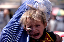 "KABUL 03 August 2005..In a crowded street of Kabul, I come across a woman and a child with a dark lump on her face...The only words the woman says to me are:' DOCTOR.... DOCTOR'...I write down her name & address:..""Shabana, Panza Family, Khair-Khana, Kabul"""