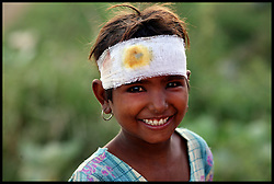 An Indian girl smiles with a bandage on her head in the Village of Kesroli in the of District Alwar, Rajasthan, India. Photo by Andrew Parsons/  i-images