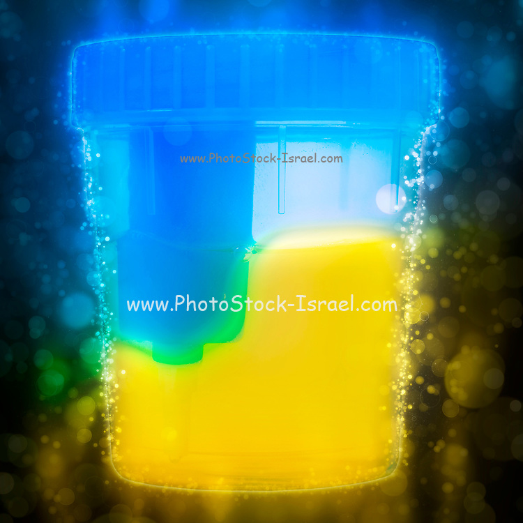 Digitally enhanced image of a sterile Urine sample cup, containing a urine sample