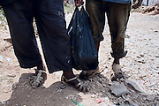 Feet of two homeless boys. Addis Ababa, Ethiopia, 29-03-08...///   In Addis Ababa 85% of the population lives in slums, about 21% of people in the capital city are living on less than 1 dollar per day..Migration to urban areas is usually motivated by the hope of better living conditions. Society growth, migration, and urbanization are straining governments capacity to provide people basic services. Poverty and health conditions are getting worse. Over than 120.000 people live without house, 18% are kids, with ages between 7 and 20 years old. Severals NGOs supply the problem by various support programs. Italian organization provide by the help of young street artistes with circus therapy project.