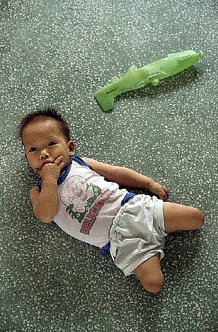 ca. May 1993, Ho Chi Minh City, Vietnam --- Portrait of Infant With Deformed Legs --- Image by © Owen Franken/CORBIS
