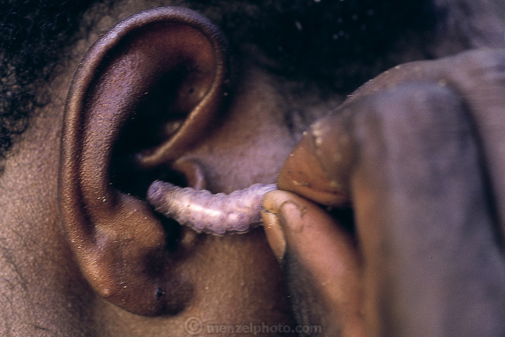 "An Asmat native demonstrates the technique of cleaning the ear canal with a young sago grub. ""You have to hold onto the tail"", they caution, ""never let go, you don't want the worm getting lost and coming out the other ear!"" Down river from the Sawa village, Irian Jaya, Indonesia. (Man Eating Bugs page 74 Top)"