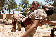 Libya, Sirte: A fighter sympathising with Libya's Government of National Accord's (GNA) carries a comrade who got seriously injured by a booby trap placed by ISIS fighters. Alessio Romenzi