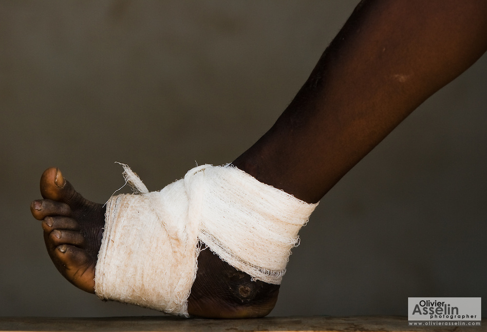 Bandaged leg of a young boy suffering from guinea worm at the guinea worm case containment center in Savelugu, northern Ghana, on Friday March 9, 2007. A parasite transmitted through water, guinea worm emerges from the host's body nine months after drinking contaminated water. Measuring up to 1 meter, it can only be pulled out a few cm every day to prevent it from breaking inside the host's body. Despite a widespread eradication program Ghana has the second largest number of cases in the world - after Sudan.