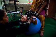 A disabled child is receiving therapy inside Chingari Trust, the local NGO caring for disabled  children in Bhopal, Madhya Pradesh, India, near the abandoned Union Carbide (now DOW Chemical) industrial complex.