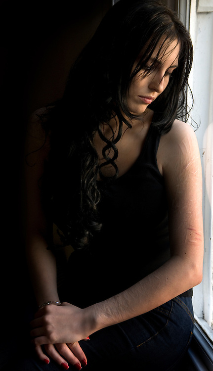 woman showing self harm scars