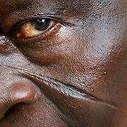 Benin, Cotonou March 04, 2006 - Man with tribal scarification on his face. Scarification is used as a form of initiation into adulthood, beauty and a sign of a village, tribe, and clan.