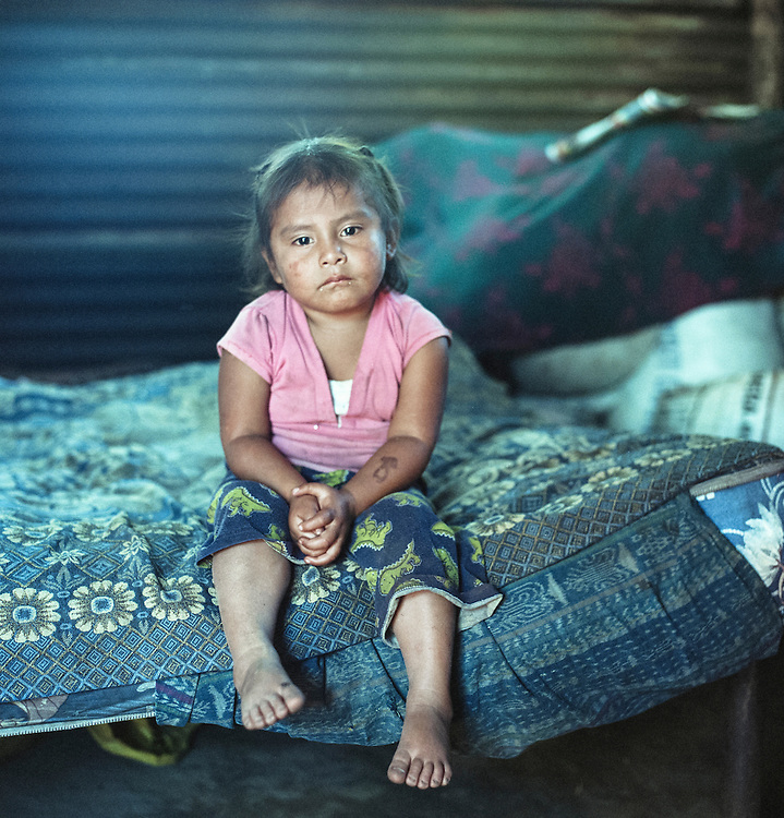 Ruth Tecun is 4 years old and lives with six siblings, mother and father in the village of San Gregorio. The family rents a piece of land, but they hope to one day own their own land to become self-sufficient farmers.