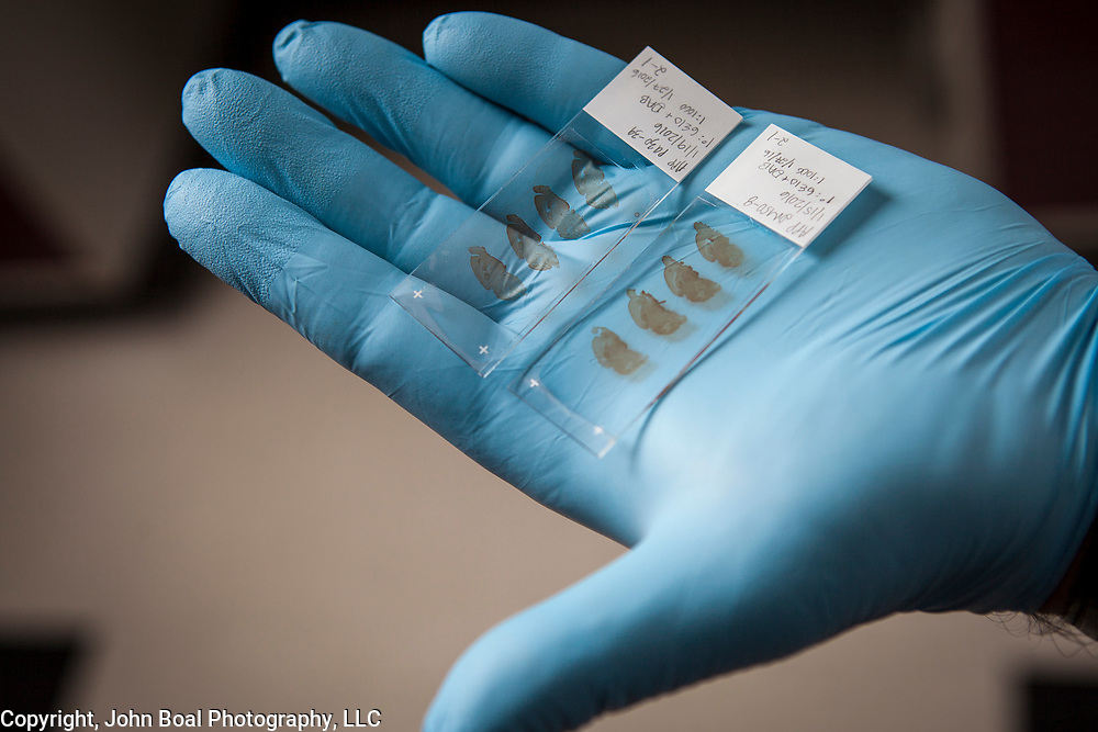 Dr. Moussa holds slides with longitudinal slices of mouse brain from experiments at his laboratory at Georgetown University, on Wednesday, August 17, 2016.  Dr. Moussa is investigating new therapeutic treatments for Parkinson's, Alzheimer and other related diseases. For STAT News