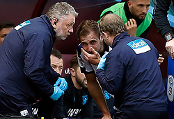 West Bromwich Albion's Craig Dawson (centre) being treated for an injury during the game