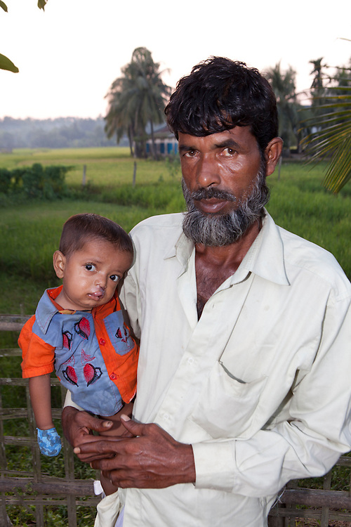 Bangladesh cleft lip