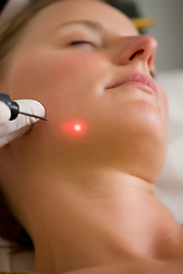 Close up of a woman receiving a laser treatment on her face