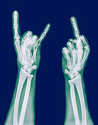 x-ray of a human hand making obscene hand gestures