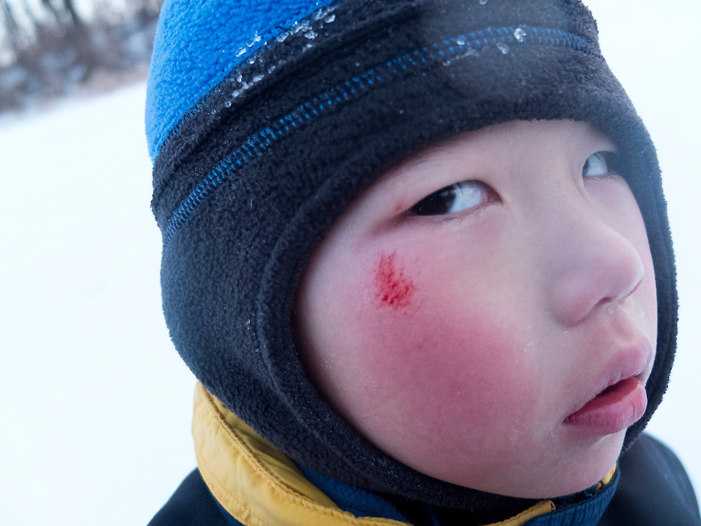 As day falls to night, Holden Miller, 4, is pictured with a blooded cheek following a spectacular sledding wipe at Indian Lake County Park in Dane County near Madison, Wis., during winter on Feb. 4, 2012. The picture was made as families and friends gathered for a campfire and evening of moonlit-snow sledding.