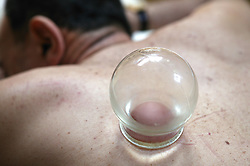 Cupping treatment being applied to patients back,