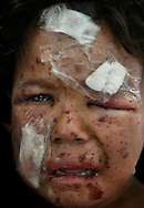 The tiny, battered, weeping face of a 4-year-old child named Noor who escaped with her mother during fierce battle with ISIS in Mosul, Iraq is treated at a trauma field hospital operated by Aspen Medical and World Health Organization in Athba, 15 kilometers from the front line on May. 19, 2017.  She sustained shrapnel wounds and injuries after their home collapsed. (photo by Carol Guzy)