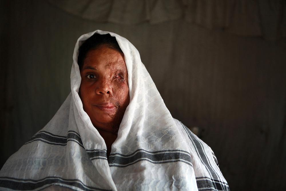 SANTO DOMINGO (REP&Uacute;BLICA DOMINICANA), 09/09/11.- <br /> Ana Miriam N&uacute;&ntilde;ez, 36 a&ntilde;os, fue quemada con &aacute;cido, el d&iacute;a 03 de julio del 2007, por una mujer que la atac&oacute; en la puerta de su casa.<br /> Ana Miriam, perdi&oacute; su ojo izquierdo, y graves lesiones en el rostro, o&iacute;do izquierdo, senos, brazos y piernas, en total el 70% de su cuerpo sufri&oacute; quemaduras.<br /> En Rep&uacute;blica Dominicana, existe un producto conocido popularmente como Acido del Diablo&rdquo;, el cual es una sustancia que contiene los productos destinados a destapar ba&ntilde;os y tuber&iacute;as dom&eacute;sticas, y que se genera por la combinaci&oacute;n de sustancias qu&iacute;micas, las cuales son mezcladas con az&uacute;car o miel, con el objetivo de causar un da&ntilde;o mayor a las v&iacute;ctimas.<br /> El denominado &ldquo;&aacute;cido del diablo&rdquo; es usado mayormente en los barrios marginados del pa&iacute;s, como arma criminal contra quienes se consideran enemigos de la v&iacute;ctima, generalmente por enfrentamientos pasionales, deudas de dinero y venganzas.<br /> Seg&uacute;n datos oficiales, el 14% de los pacientes atendidos en la Unidad de Quemados del Hospital Eduardo Aybar, (centro especializado en la capital dominicana), son v&iacute;ctimas del Acido del Diablo.<br /> EFE/Orlando Barr&iacute;a
