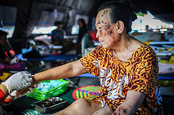 October 4, 2018 - Palu, Central Sulawesi, Indonesia - Mrs Johar (56) is reviving treatment  at Anutapura Hospital after the earthquake..After the earthquake and tsunami  she losing her son, daughter-in-law and grandson..A deadly earthquake measuring 7.7 magnitude and the tsunami wave caused by it has destroyed the city of Palu and much of the area in Central Sulawesi. According to the officials, death toll from devastating quake and tsunami rises to 1,347, around 800 people in hospitals are seriously injured and some 62,000 people have been displaced in 24 camps around the region. (Credit Image: © Hariandi Hafid/SOPA Images via ZUMA Wire)