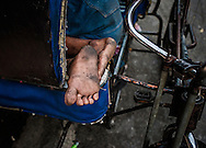 Sleeping pedi-rickshaw driver's feet.  Malate, Manila, Philippines.