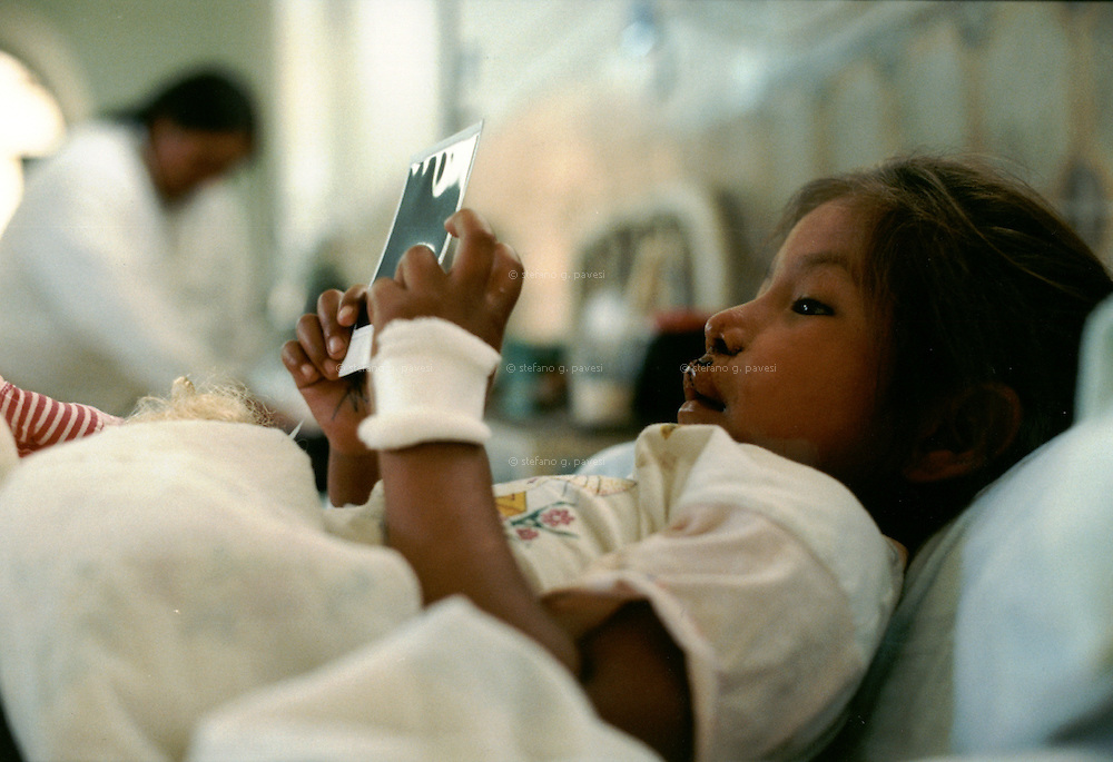 Bolivia, Cochabamba , February 1999 - A child on her bed whatching a polaroid of hers before surgery.<br /> <br /> Operation Smile is a private, not-for-profit volunteer medical services organization providing reconstructive surgery and related health care to indigent children worldwide.