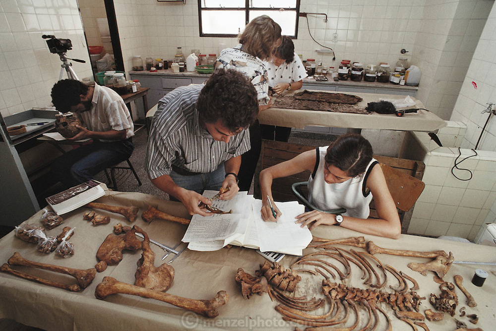 "Forensic research. (1992) Argentine Forensic Anthropology team in morgue of San Isidrio Hospital measuring and cataloguing bones of a ""desparacido"" a disappeared Argentinian.  Mercedes Doretti (sleeveless), Patricia Bernardi, Silvana Turner (short hair), Carlos (Marco) Somigliana (beard), Luis Fondebrider.  Data is entered into a computer and eventually they hope to match data to make an ID.  They hope to extract DNA from bones for DNA fingerprinting. Skeleton in a forensic laboratory. The bones have been numbered for identification. The researchers are trying to determine the identity of the body, which can be done by extracting and studying DNA. DNA (deoxyribonucleic acid) is the chemical responsible for heredity, and is different in each individual. These are the remains of someone abducted and murdered during the military rule in Argentina between 1976 and 1983. The hole in the skull is testament to a violent death.  Buenos Aires, Argentina. DNA Fingerprinting. MODEL RELEASED"