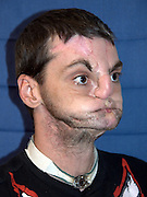 'He has his life back': U.S. doctors give gun accident victim a new face, tongue and jaw in most extensive face transplant ever<br /> <br /> <br /> A 37-year-old man injured in a 1997 gun accident has been given a new face, teeth, tongue and jaw in what doctors say is the most extensive face transplant ever performed.<br /> Officials at the University of Maryland Medical Center announced today that Richard Lee Norris is recovering well after last week's 36-hour surgery.<br /> He is beginning to feel his face and already brushing his teeth and shaving. He's also regained his sense of smell, which he had lost after the accident.<br /> <br /> For 15 years, Mr Norris lived as a recluse, hiding behind a mask and only coming out at night time.<br /> The transplant will give him his life back, said Dr Eduardo Rodriguez, the lead surgeon.<br /> 'It's a surreal experience to look at him. It's hard not to stare.<br /> 'Before, people used to stare at Richard because he wore a mask and they wanted to see the deformity,' Rodriguez said.<br /> <br /> 'Now, they have another reason to stare at him, and it's really amazing.'<br /> The surgeons are calling it the world's most comprehensive face transplant which allowed the Virginia man to emerge from behind his mask after 15 years.<br /> When he shot himself in the face in 1997 he lost his nose, lips and most movement in his mouth. He has had multiple life-saving, reconstructive surgeries but none as successful as this.<br /> He received the new face from an anonymous donor last week whose organs saved five other patients' lives on the same day.<br /> Six days after the surgery, he can already move his tongue and open and close his eyes and is recovering much faster than doctors expected.<br /> 'He's actually looking in the mirror shaving and brushing his teeth, which we never even expected,' said Dr Eduardo Rodriguez, associate professor of surgery at the University of Maryland School of Medicine and head of the transplant team, w