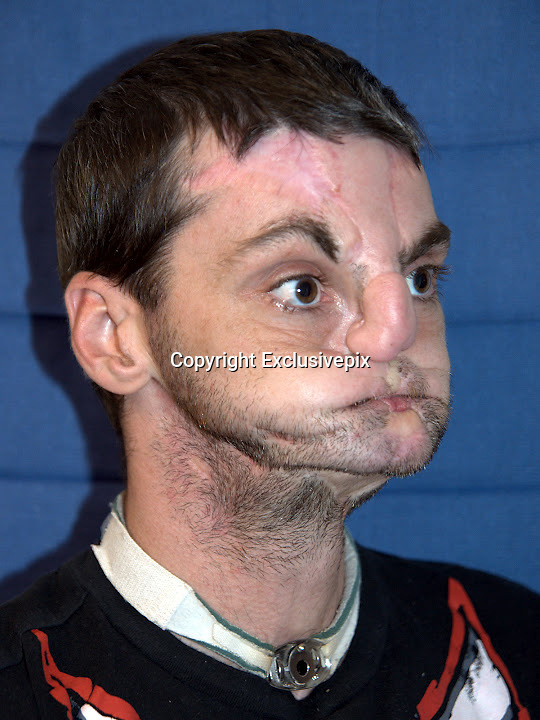 'He has his life back': U.S. doctors give gun accident victim a new face, tongue and jaw in most extensive face transplant ever<br /> <br /> <br /> A 37-year-old man injured in a 1997 gun accident has been given a new face, teeth, tongue and jaw in what doctors say is the most extensive face transplant ever performed.<br /> Officials at the University of Maryland Medical Center announced today that Richard Lee Norris is recovering well after last week's 36-hour surgery.<br /> He is beginning to feel his face and already brushing his teeth and shaving. He's also regained his sense of smell, which he had lost after the accident.<br /> <br /> For 15 years, Mr Norris lived as a recluse, hiding behind a mask and only coming out at night time.<br /> The transplant will give him his life back, said Dr Eduardo Rodriguez, the lead surgeon.<br /> 'It's a surreal experience to look at him. It's hard not to stare.<br /> 'Before, people used to stare at Richard because he wore a mask and they wanted to see the deformity,' Rodriguez said.<br /> <br /> 'Now, they have another reason to stare at him, and it's really amazing.'<br /> The surgeons are calling it the world's most comprehensive face transplant which allowed the Virginia man to emerge from behind his mask after 15 years.<br /> When he shot himself in the face in 1997 he lost his nose, lips and most movement in his mouth. He has had multiple life-saving, reconstructive surgeries but none as successful as this.<br /> He received the new face from an anonymous donor last week whose organs saved five other patients' lives on the same day.<br /> Six days after the surgery, he can already move his tongue and open and close his eyes and is recovering much faster than doctors expected.<br /> 'He's actually looking in the mirror shaving and brushing his teeth, which we never even expected,' said Dr Eduardo Rodriguez, associate professor of surgery at the University of Maryland School of Medicine and head of the transplant team, who spoke at a press conference.<br /> When Norris opened his eyes on the third day after the surgery with hi