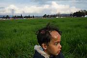 March 3, 2016, Idomeni, Greece. Ibrahim -5 years - in the make shift  refugee camp in Idomeni, Greece. He fled Deir ez-Zor in Syria with his family. He was burned after their house was bombed. 12.000 refugees are stuck at the Idomeni border crossing in Greece  after Macedonia closed the border.  New arrivals come in every day, making living conditions difficult.(Steven Wassenaar/Polaris)