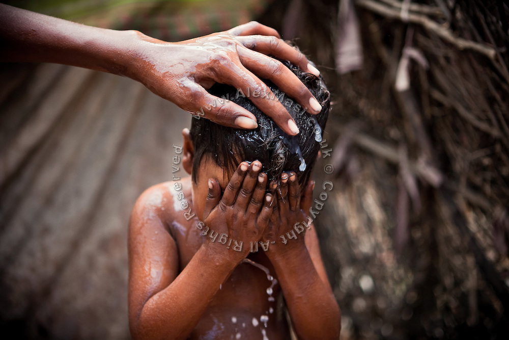 Meenakshi, 7, a young girl born suffering from a severe neurological disorder, is being washed by her brother in their home in the impoverished Oriya Basti colony, Bhopal, Madhya Pradesh, India, near the abandoned Union Carbide (now DOW Chemical) industrial complex.