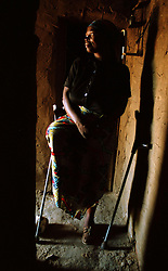 Valentina Cayovo, 38, stands on her crutches inside her home which she rebuilt after guerrilla UNITA forces destroyed it. Angola's brutal 26 year-civil war has displaced around two million people - about a sixth of the population - and 200 die each day according to United Nations estimates. .(Photo by Ami Vitale)
