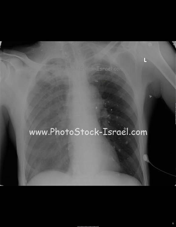 Chest X-ray of a 57 year old male patient shrapnel and discolouring due to liquids can be seen in the left lung