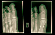 X-ray of the toes of a 10 year old patient with a mid phalanx fracture