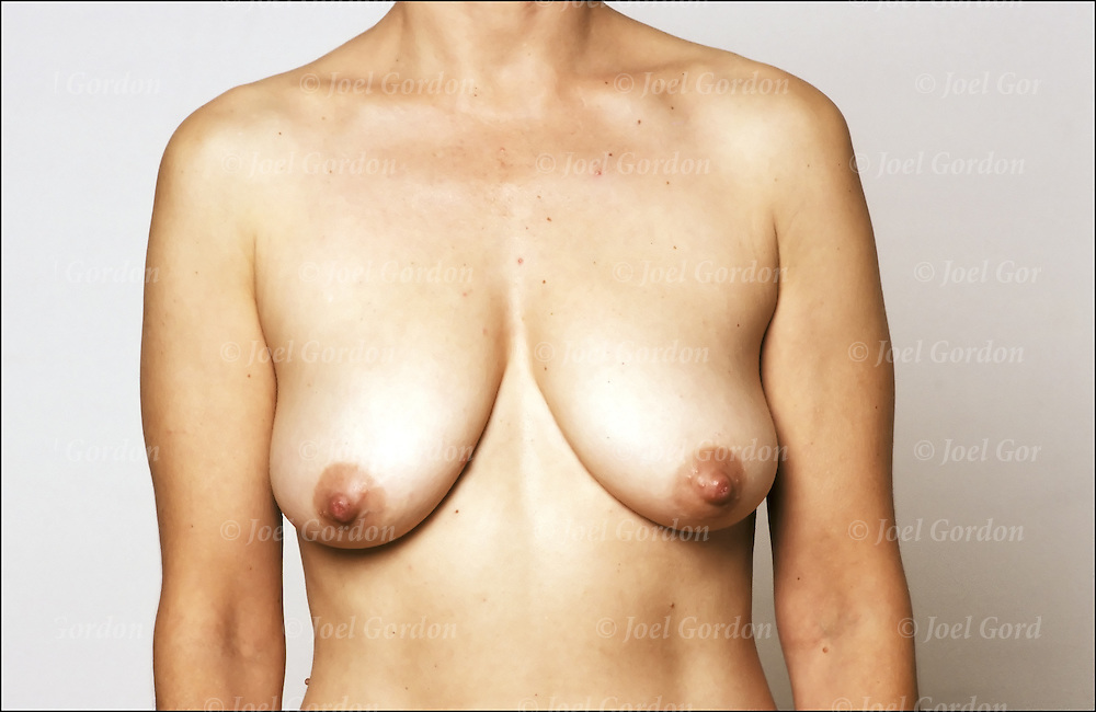 Young womans breast shape, size and appearance vary greatly.
