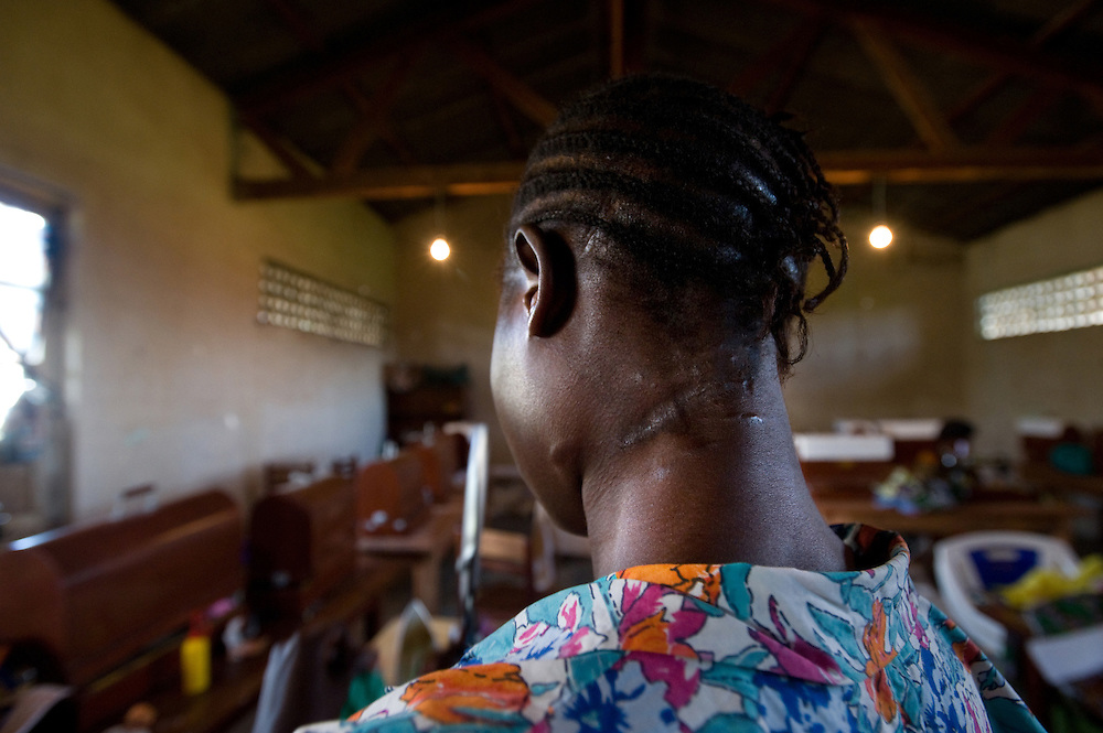 Ndrodha Georgine (19) who was attacked with a machete and had her finger cut off at a refuge for women who are victims of the war in Bunia, DRC.