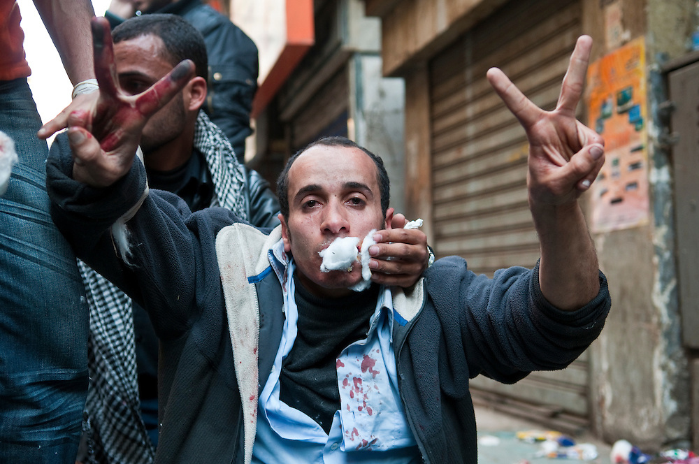 A demonstrator is treated at a makeshift clinic in Tahrir Square after being injured in clashes with pro-government counter-demonstrators (Cairo, Egypt - February 2, 2011)
