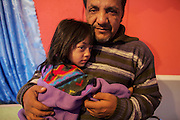 Flurim Masurica and his daughter Senhia, 4, are IDP's (internally displaced people) from Roma Mahala in the southern part of Mitrovica. At the end of the civil war  in 2000, the Roma's and the Serb's where chased out of the southern Mitrovica. The IDP's settled in the UN Camp Cesmin Lug and other camps in the northern Mitrovica. The Masurica Family of 4 has lived here for 10 years.