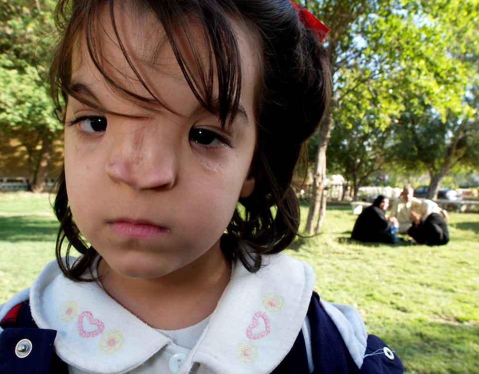 13 january 2004.Basra, Iraq..Waiting in hope of medical treatment abroad..6 year old Tarabak Maheb was born with a badly deformed nose and returns from school crying because of playground teasing. She is on a waiting list for cosmetic surgery in Italy but her trip has been delayed without explanation.