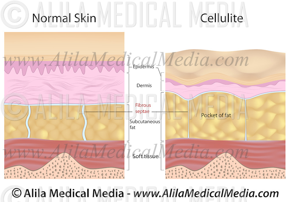 Cellulite versus smooth skin | Alila Medical Images