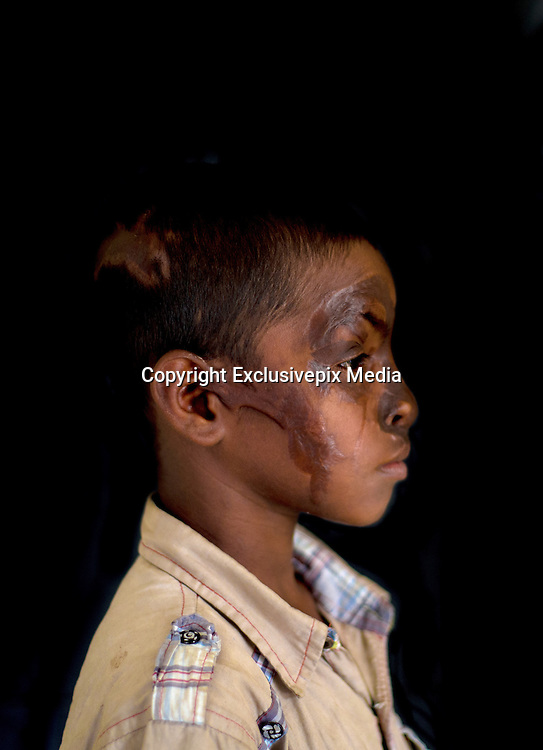 """Narayanganj, Bangladesh - <br /> <br /> Acid Attack<br /> <br /> Acid throwing, also called an acid attack or vitriolage, is a form of violent assault. It is defined as the act of throwing acid onto the body of a person """"with the intention to disfigure, maim, torture, or kill.'Äù Perpetrators of these attacks throw acid at their victims, usually at their faces, burning them, and damaging skin tissue, often exposing and sometimes dissolving the bones. The long term consequences of these attacks include blindness and permanent scarring of the face and body, along with far-reaching social, psychological, and economic difficulties. These attacks are most common in Cambodia, Afghanistan, India, Bangladesh, Pakistan. Globally, at least 1500 people in 20 countries are attacked in this way yearly, 80% of whom are female and somewhere between 40% and 70% under 18 years of age.<br /> <br /> Acid violence is a particularly vicious and damaging form of assualt in Bangladesh where acid is thrown in people' faces. The overwhelming majority of the victims are women, and many of them are below 18 years of age. The victims are attacked for many reasons. In some cases it is because a young girl or women has spurned the sexual advances of a male or either she or her parents have rejected a proposal of marriage. Recently, however, there have been acid attacks on children, older women and also men. These attacks are often the result of family and land dispute, dowry demands or a desire for revenge.<br /> <br /> But the scars left by acid are not just skin deep. In addition to the inevitable psychological trauma, some survivors also face social isolation and ostracism that further damage their self-esteem and seriously undermine their professional and personal futures. Women who have survived acid attacks have great difficulty in finding work and, if unmarried (as many victims tend to be), have very little chance of ever getting married. In a country like Bangladesh this has serious soci"""