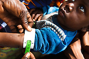 A boy has the circumference of his arm  measured to monitor potential nutritional problems in the village of Banankoro, Mali on Saturday August 28, 2010.