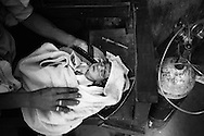 A young baby receives oxygen on a bench in the outside courtyard of a rural medical centre. The syringe next to the baby is dirty and already used. <br />