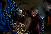 2017 - Under Five Malnutrition Crisis - Chad