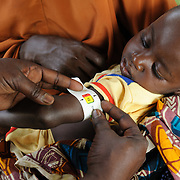 A child is screened for malnutrition using a Mid Upper-Arm Circumference (MUAC) measurement at a Save the Children therapeutic feeding centre in the village of Koona in the Tessaoua region of Niger. Moderate malnutrition is indicated.