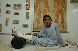 Patients at the orthopedic center set up by the International Committee for the Red Cross in Kabul, Afghanistan August 5, 2002.  (Photo  by Ami Vitale)