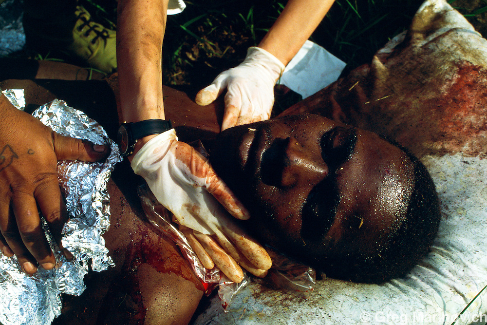 KwaMashu township, KwaZulu Natal, South Africa 1994. Medics try to save a man shot from a car in KwaMashu township.