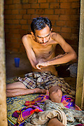 "29 OCTOBER 2012 - MAYO, PATTANI, THAILAND:  A patient at the Bukit Kong home in Mayo, Pattani. He said one of his names is Sukria, but then added, ""I have so many names I don't remember who I am anymore."" He is kept shackled in his room at the home. The home opened 27 years ago as a Pondo School, or traditional Islamic school, in the Mayo district of Pattani. Shortly after it opened, people asked the headmaster to look after individuals with mental illness. The headmaster took them in and soon the school was a home for the mentally ill. Thailand has limited mental health facilities and most are in Bangkok, more than 1,100 kilometers (650 miles) away. The founder died suddenly in 2006 and now his widow, Nuriah Jeteh, struggles to keep the home open. Facilities are crude by western standards but the people who live here have nowhere else to go. Some were brought here by family, others dropped off by the military or police. The home relies on donations and gets no official government support, although soldiers occasionally drop off food. Now there are only six patients, three of whom are kept chained in their rooms.  Jeteh says she relies on traditional Muslim prayers, holy water and herbal medicines to treat the residents. Western style drugs are not available and they don't have a medic on staff.    PHOTO BY JACK KURTZ"